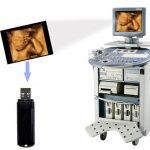 4D Ultraschallaufnahmegerät